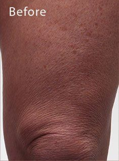 Pin By Sue Stevenson On Sue S Crepey Skin Crepe Skin Anti Aging Treatments