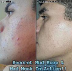 Jabon De Lodo Y Mascarilla De Lodo Seacret En Accion!!!  TREMENDO TESTIMONIO!!! WWW.SEACRETDIRECT.COM/TEAM1  Productos Reales Resultados Reales!!!    Seacret Mud Soap  Mud Mask In Action!!!  Wow Factor Products!!!