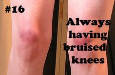 Volleyball problems....my knees are so ugly right now