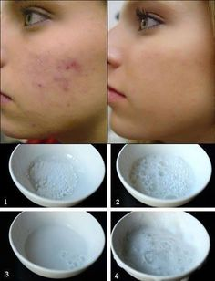 A natural way to keep you pimple and blemish free.. Natural Scar/Blemish Remover. A simple do-it-yourself remedy to minimize acne marks/blemishes. Leave by mixing 1/2 teaspoon baking soda and 1/2 teaspoon purified water to create a paste. Apply to affected area for 5 minutes; splash off. After, apply coconut oil. Prevents darkening. Can be done before sleeping. Worth a try! May not work for everyone, but it's always worth a try. No need for scrubbing.