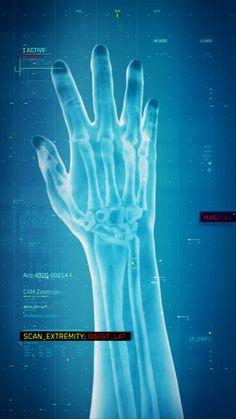 Scarab Digital's UI of S.T.A.R. LABS Barry Allen Broken Wrist #TheFlash #Flash…