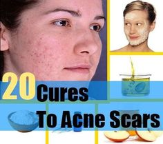 20 Natural Cure For Acne Scars - How To Cure Acne Scars Naturally | Search Herbal & Home Remedy