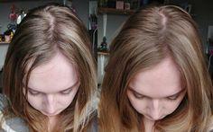 Вы будете поражены результатами: пищевая сода остановит выпадение волос, поддержит их рост и оживит.