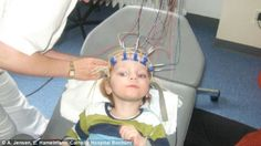 Before his treatment, the patient had been in a persistent vegetative state for nine weeks due to having a heart attack