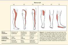 Bulging discs and nerve impingement at L4/L5/S1 region