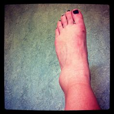 6 Clues Your Ankle is Broken Not Sprained/ The Survival Doctor