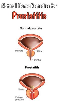 Prostate inflammation or prostatitis makes stinging, itching during urination, burning feeling and pain in rectum and bladder. Natural Remedies For Anxiety, Natural Cures, Natural Healing, Medical Memes, Medical Photos, Medical Laboratory Science, Health Lessons, Healthy People 2020 Goals, Medical Information