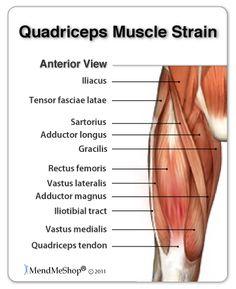 Quadriceps Strain