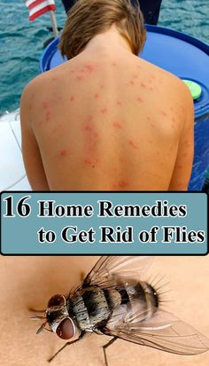 home remedies for stretch marks that work surprisingly well save for later diy pinterest. Black Bedroom Furniture Sets. Home Design Ideas