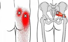 Fitness Workouts, Easy Workouts, Fitness Tips, Siatic Nerve, Nerve Pain, Sciatic Pain, Sciatica, Leg Pain, Back Pain