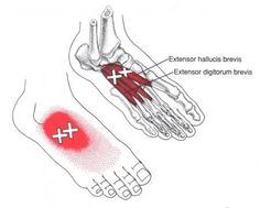 Extensor Hallucis Brevis | The Trigger Point & Referred Pain Guide