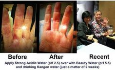Kangen Water is beneficial for a variety of skin conditions including; eczema and psoriasis. Learn more about the healing qualities of alkaline rich ionized water. Kangen Water Benefits, Alkaline Water Benefits, Ionised Water, Water Type, Kangen Water Machine, Beauty Water, Drink More Water, Water Systems, Medical Conditions