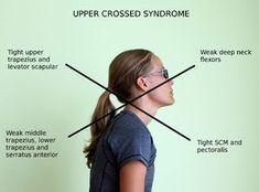 upper crossed symdrome posture