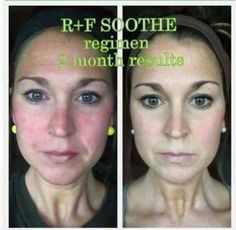 Do you suffer from some form of sensitive skin? Or do you know someone who does and is looking for relief? Our Soothe Regimen can help with redness, irritation, and dryness. 💚   👉🏻This just might be the relief you've been looking for! Try it for 60 days and if you aren't completely satisfied, get your money back.  Check out Shelly's results below! 👇🏻