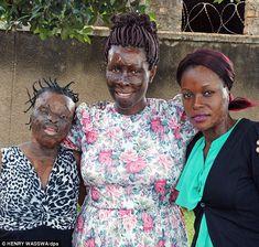 Inspirational: Acid victims Silvier Nambirige, Gloria Kankunda, director of the Center for Rehabilitation of Survivors of Acid and Burns Violence (CERESAV), and Linneti Kirungi, in Kampala, Uganda