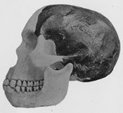 Arthur Smith Woodward's reconstruction of the skull of Piltdown Man. Dawson's Dawn Man  Believing the skull fragments and jawbone to be from the same individual, Smith Woodward made a reconstruction. It suggested an early human with a large brain, indicating a level of intelligence that set it clearly apart from the apes. The jawbone, ape-like but with human-looking teeth, linked the skull with its supposed evolutionary ancestors.