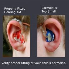 How to put in a child's hearing aid - Ling Sounds included.