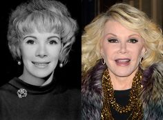 Joan Rivers from Celebs Who've Admitted to Getting Plastic Surgery  The Fashion Police host has joked about having over 700 procedures done, and although it's not quite that many, Rivers has admitted to getting a number of Botox injections, several nose jobs, an eye tuck, liposuction and a few face-lifts.