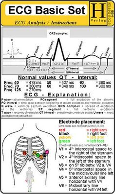 Understand the ECG! Thank you Medical Assistant - St. Augustine School of Medical Assistants, now offering a nationally accredited and certified Medical Assistant program online. Ecg, Nursing Information, Cardiac Nursing, Nursing School Notes, Nursing School Humor, Nursing Schools, Nursing Programs, Nurse Life, Rn Nurse