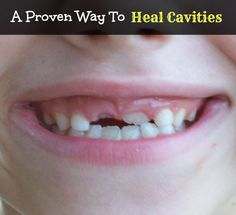 A Proven Way to Heal Cavities Naturally