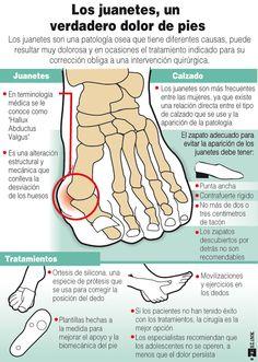Consejos y recomendaciones sobre los #juanetes, un verdadero dolor de #pies