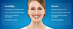 We are now offering Invisalign treatments! #dentist #bradenton