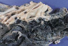 肺気腫(画像はモザイク加工のもの)  5月31日は世界保健機関(WHO)が定めた「世界禁煙デー」。喫煙による健康被害を啓発して禁煙を促すことが目的だ。  日本で…
