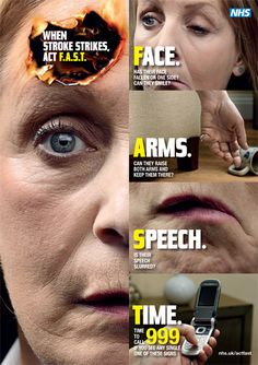 Stroke awareness: act FAST