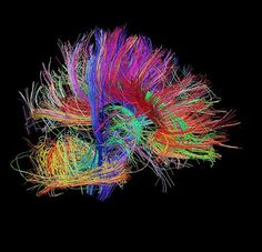 These incredible psychedelic images are synapse maps of the human brain at work. The Human Connectome Project has been exploring the brain's conenctions using a high-resolution map since 2010, and the project seeks to examine the brains of 1,200 volunteers to create a database of healthy brain structure. These images show the Human Connectome Project's […]
