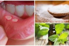 Cold And Canker Sores Cold Sore, Arthritis, Natural Remedies, Dental, The Cure, Projects To Try, Health Fitness, Food, Canker Sores