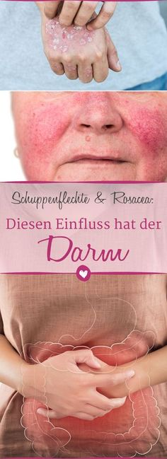 Schuppenflechte, Rosacea und Co.: Gesunder Darm, gesunde Haut # psoriasis and other skin diseases can result from an imbalance in the # intestine. Le Psoriasis, Psoriasis Arthritis, Psoriasis Remedies, Shampoo Diy, How To Tr, Belleza Diy, Types Of Arthritis, Health And Nutrition, Home Remedies