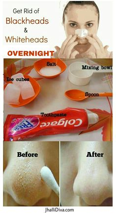 5 Effective Remedies to get rid of those pesky Blackheads overnight..
