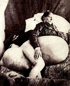 """In 1809, 46 year old Jane Todd Crawford rode 60 miles on horseback to see Dr. Ephraim McDowell who removed a 22 lb ovarian tumor through a 9"""" incision in 25 minutes (before anesthesia and antiseptic). Within a few weeks she got back on the horse, rode home, and lived another 22 years."""