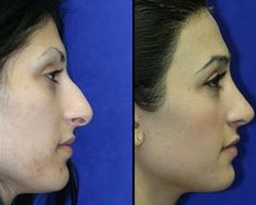 rhinoplasty is done to improve, enhance, or even restore functionality of the nose . visit: http://www.doctorbinder.com/