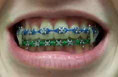 Image Cute Girls With Braces, Cute Braces Colors, Kids Braces, Dental Braces, Teeth Braces, Green Braces, Gold Braces, Power Chain Braces, Braces And Glasses
