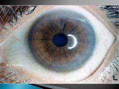 Grafica de Iris del Reflejo Multiple<br />