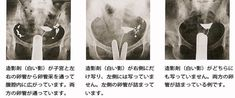 子宮卵管造影検査は、卵管が詰まってしまって、卵が精子にえぐり会えないという卵管障害を調べる検査です。基本的に、妊娠の可能性のない卵胞期に行われます。 Movie Posters, Film Poster, Billboard, Film Posters