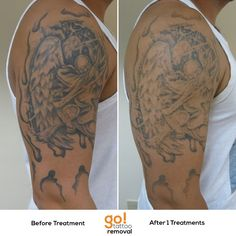 This half sleeve wasn't to the client's liking and a good majority of the shading has been cleared out after a single treatment.  Likely this client will end up with 3 total treatments before getting a coverup.   Every tattoo will have different results, we post a wide variety of images to help set realistic expectations.    See more progress photos http://www.gotattooremoval.com/laser-tattoo-removal-progress-photos/