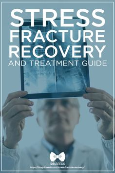 Stress Fracture Recovery and Treatment Guide | Stress fracture treatment varies depending on location and severity. Early diagnosis can prevent bone damage and further complications.
