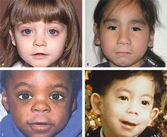 Fetal Alcohol Spectrum Disorders - Let's raise awareness...photos, telling facial characteristics, does your child have these? Think before you drink.