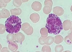 Alder-Reilly = dense granules in WBCs, AR, seen w/mucopolysacc Medical Laboratory Scientist, Med Lab, Lab Tech, College Classes, Phlebotomy, Blood Cells, Medical Technology, Study Materials, Wbc
