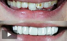 Veneers removeable veneer dentures flippers pontics teeth now you can improve your smile without fixing your teeth its all done lab direct solutioingenieria Gallery