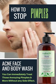 Acne Face & Body Wash / Powerful, SAFE and gentle without any HARSH chemicals / This unique non soap acne cleanser is made to fight blemishes and future acne breakouts. It can help restore your skin's nutritive pH balance which helps reduce red marks and acne. Immediately stops the breakout or pimple from getting bigger and helps it to disappear.