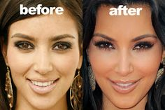 Kim Kardashian still denies having plastic surgery procedures done on her face even though she admitted using Botox. Plastic Surgery Before After, Botox Before And After, Celebrities Before And After, Kardashian Plastic Surgery, Celebrity Plastic Surgery, Zooey Deschanel, Facial, Kim Kardashian Before, Kardashian Style