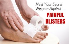 A Cheap Cure for Blisters Could Be in Your Junk Drawer | SparkPeople