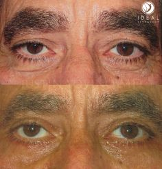 Upper and lower eyelid lifts under local anesthesia with oral sedation by Justin Yovino MD at Ideal Face and Body of Beverly Hills.