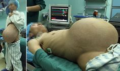 Chinese man has 2st tumour removed after more than a decade in his stomach | Daily Mail Online