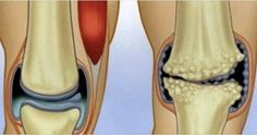 6 Natural Anti-inflammatory Remedies that Work Wonders for Joint and Knee Pain! Knee pain can be caused by a wide range of causes, such as . Foam Roller Exercises, Liver Detox Cleanse, Knee Pain Relief, Natural Headache Remedies, Skin Tag Removal, Knee Injury, Warts, Health Magazine, Sore Muscles