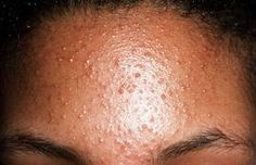 small raised bumps on forehead