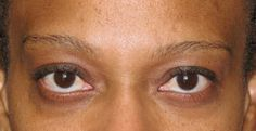 Before permanent eyebrows.